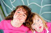 Корь у детей — пути заражения, симптомы и лечение