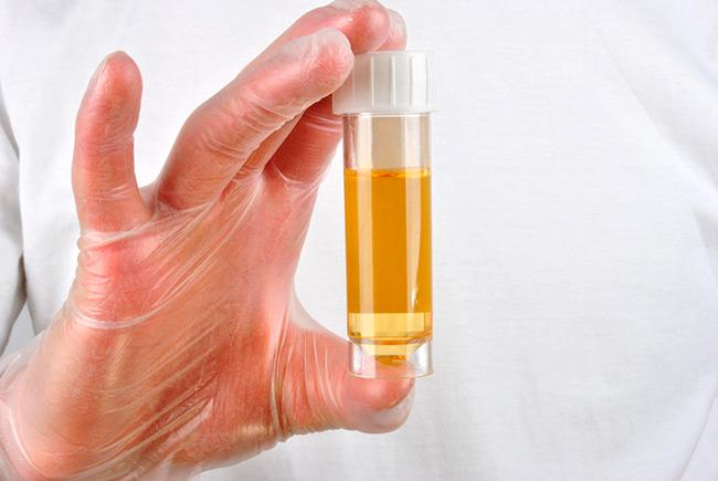 Наличие крови в моче у мужчин может быть спровоцировано и внутренними факторами, обусловленными наследственной предрасположенностью