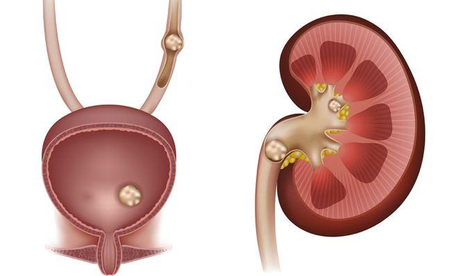 Камни в почках могут привести к появлению крови в моче.