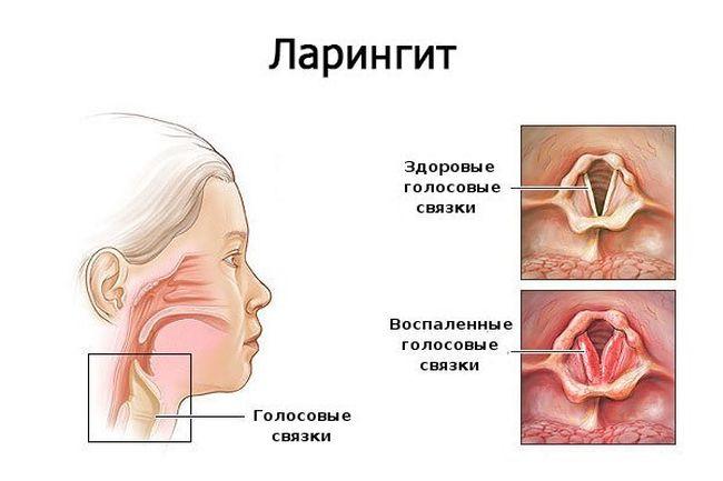 Ларингит – вирусное заболевание, которое является результатом реакции ослабленного иммунитета на внешние агрессивные факторы