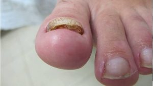 В данном виде грибка идет деформация края ногтя, ногтевая пластина теряет цвет и значительно утолщается