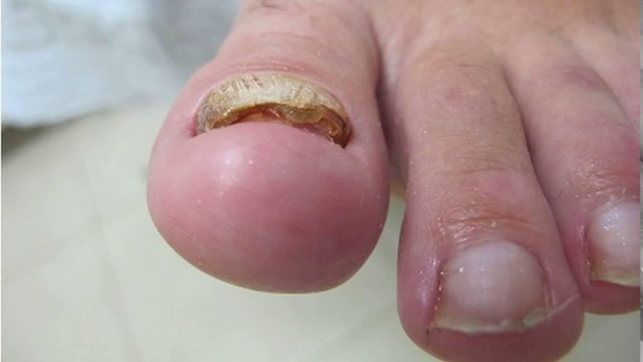 Как удаляют ноготь пораженный грибком