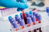 Повышение уровня лейкоцитов в крови — что это может означать?