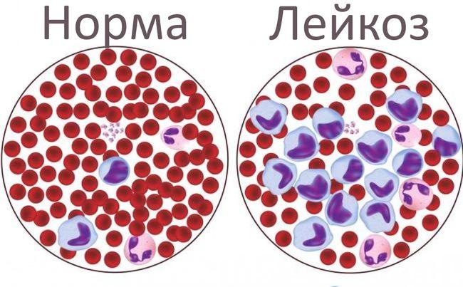 Как выглядит заболевание клеток крови - лейкоз