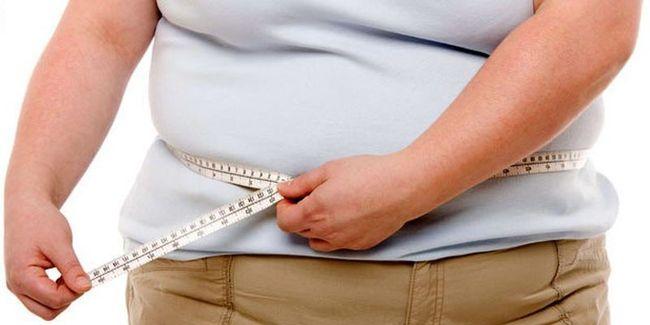 Избыточный вес может стать причиной липоматоза