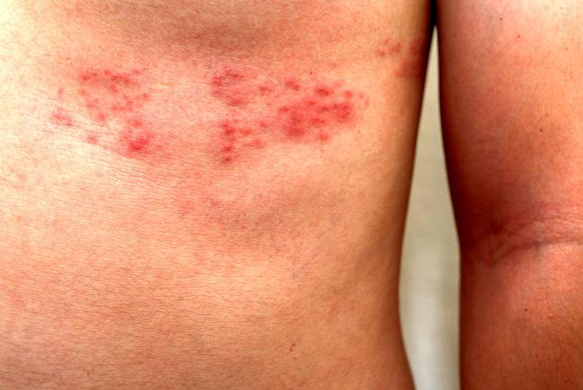 Опоясывающий лишай поражает слизистые оболочки, кожу и органы центральной нервной системы, проявляется в виде розовых пятен, которые через 2 дня превращаются в герпетические везикулы диаметром до 5 мм, сопровождается болью жжением и зудом