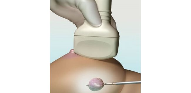УЗИ позволяет увидеть самые маленькие новообразования в молочной железе
