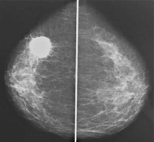 Маммография иногда дает ложноположительные результаты при диагностике в том случае, если у женщины есть естественные уплотнения в груди (которые могут быть нормой)