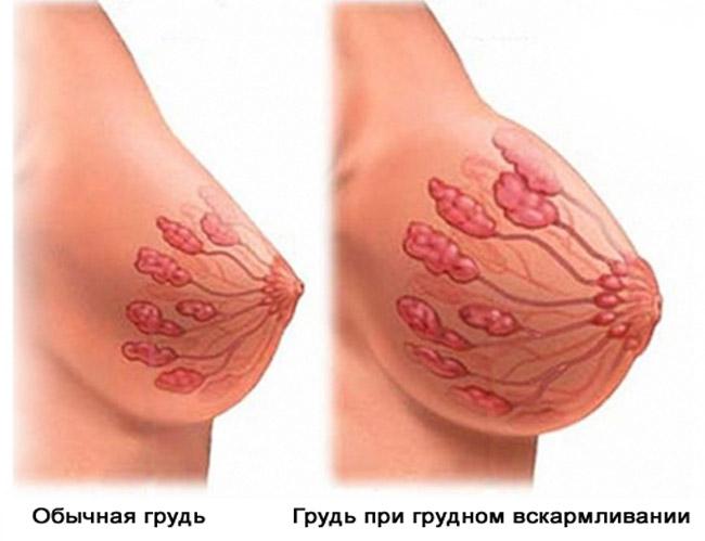 Мастит встречается у каждой третьей кормящей женщины