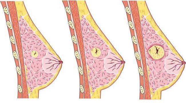 Зачастую признаки мастопатии молочной железы на начальной стадии болезни незаметны