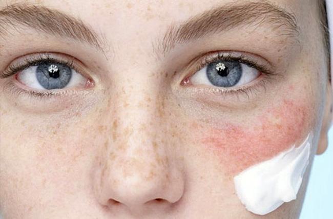 Средство предназначено только для нарожного применения, при этом следует избегать попадания препарата в глаза и на слизистые оболочки, не наносить лекарство на большие участки кожи, использовать средство для терапии высыпаний на лице не более 5 дней