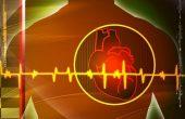 Почему возникает мерцательная аритмия сердца и как ее лечить?