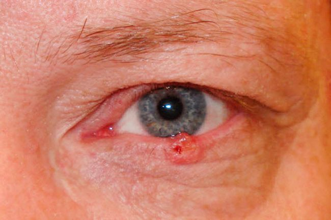 Что такое меланома и как она выглядит