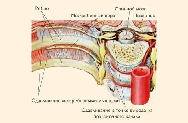 Межреберная невралгия затрагивает нервную систему сопровождается болями в груди