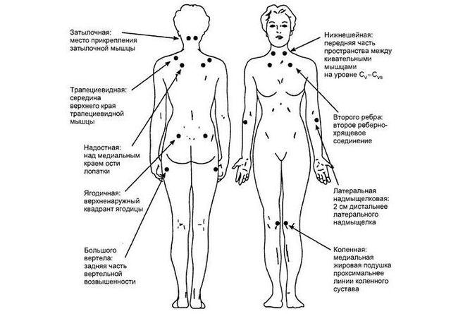 18 болевых точек при фибромиалгии