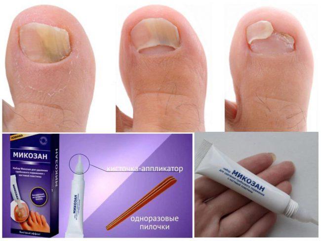 Терапевтический эффект отсутствует при нанесении средства на ногти, покрытые лаком для ногтей и др. Перед использованием Микозана следует очистить ногти