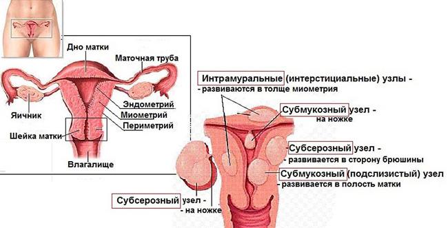 Узлы миомы матки вначале возникают в толще миометрия