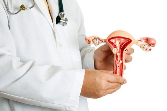 Есть два способа описания размеров миомы матки - в сантиметрах, миллиметрах или в неделях. Миома 10 недель - означает, что матка с новообразованием достигла величины десятинедельной беременности