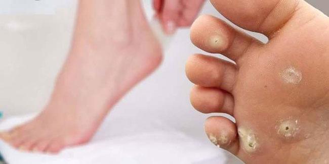 Фиброзная мозоль очень болезненна при пальпации за счет сдавливания веточек кожных нервов между участками фиброза повышенной плотности