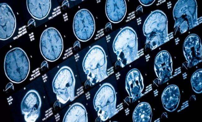 Предпосылкой к очаговой форме симптомов служит сдавливание мозговых тканей в самом опухолевом очаге