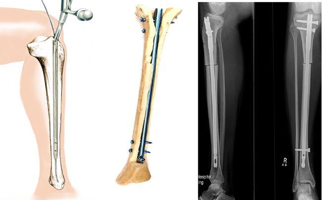 Запрещено делать МРТ, если в теле находятся металлические элементы.