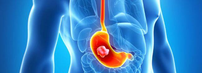 При третьей стадии недостаточности кардии желудка сфинктер не сжимается, что в итоге приводит к воспалительным процессам в желудке