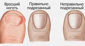 Чтобы избежать появления такого неприятного заболевания, как вросший ноготь, следует правильно подрезать ногти на ногах, как это показано на картинке