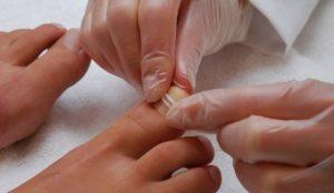 Чтобы подтвердить диагноз и подобрать правильное лечение следует обратиться к врачу - подлогу