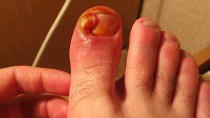 Внешние симптомы такого заболевания, как вросший ноготь очень болезненны и неприятны, поэтому следует немедленно начать лечения