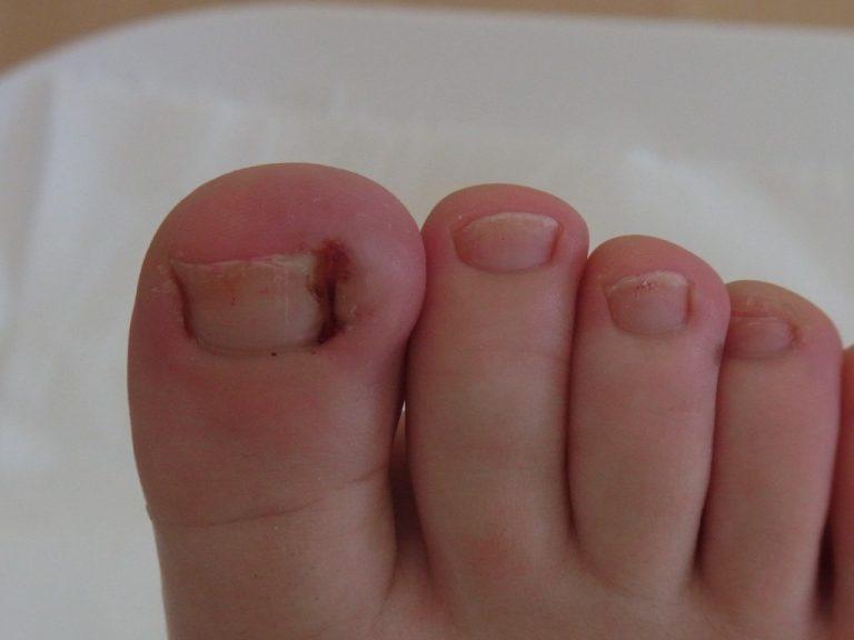Болезнь вросший ноготь
