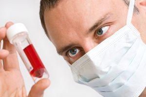 Свертываемость может снижаться как по естественным причинам, так и по причине болезни