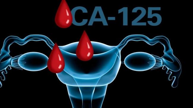 Анализ крови на онкомаркеры – это исследование крови на наличие в ней специфических белков (маркеров), которые вырабатываются злокачественными клетками