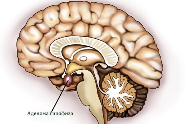 Опухоли гипофиза представляют собой доброкачественные или злокачественные новообразования, которые в большинстве случаев приводят к изменению гормонального фона организма и связанных с этим нарушениям