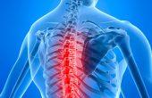 Остеохондроз грудного отдела позвоночника — причины и лечение