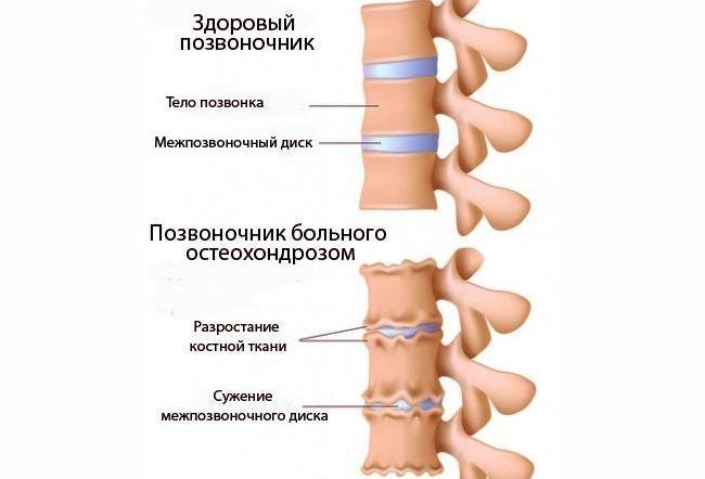 Остеохондроз - самое распространенное заболевание позвоночника