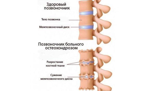 Здоровый позвоночник и больного остеохондрозом