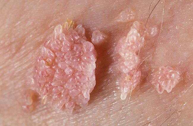 Папиллома – это общее название доброкачественных опухолевидных образований кожи и слизистых оболочек бородавчатого характера