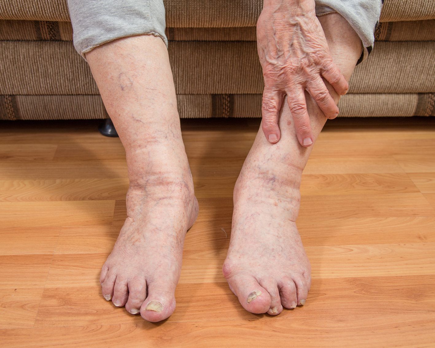 Первые признаки отеков – это небольшие следы от резинок носков на голенях, некомфортное чувство при ходьбе.