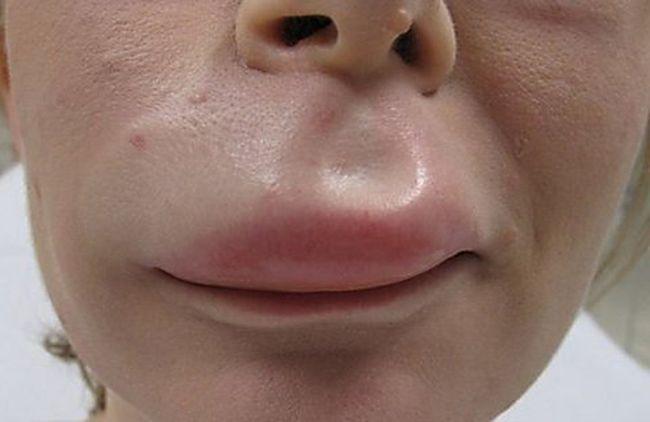 аллергия на шерсть животных симптомы лечение