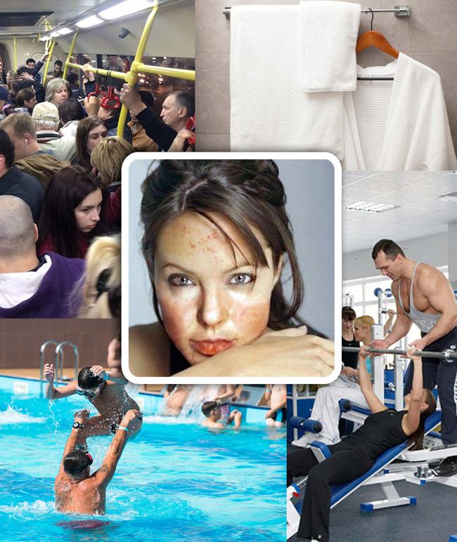 Близкий контакт, пользование чужими предматеми гигиены, тренажерный зал, бассейн или сауна - места и способы передачи Огрубевшего лишая
