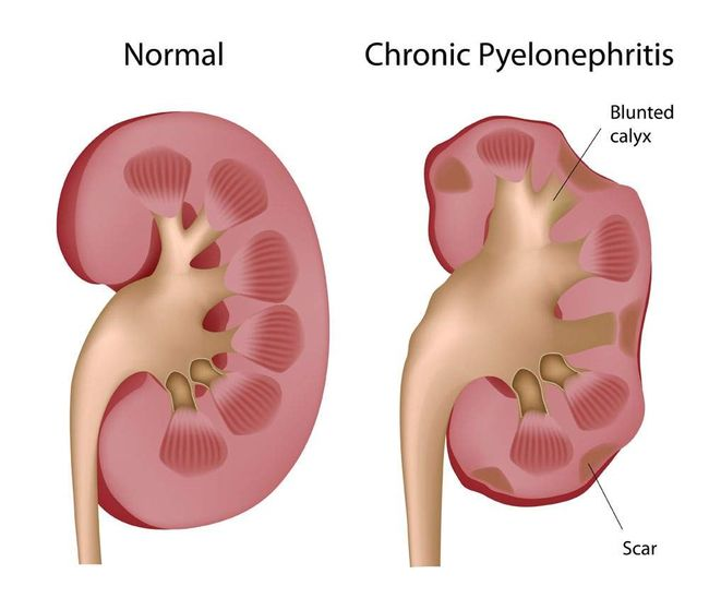 Пиелонефрит – патология, при которой воспалительный процесс затрагивает почечные лоханки