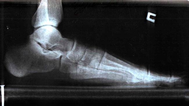 Приподниматься на носки и опускаться, делать перекаты с наружного края стопы на внутренний с помощью мячика - такие упражнения помогут предотвратить развитие плоскостопия
