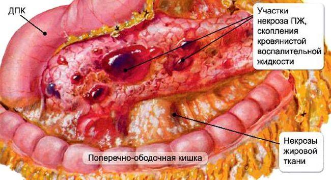 Хронический панкреатит - это хроническая форма воспаления поджелудочной железы
