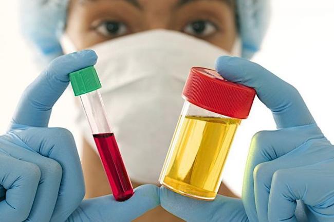 Для того чтобы убедиться в полном здоровье и отсутствии противопоказаний, перед вакцинацией делают анализ крови и мочи