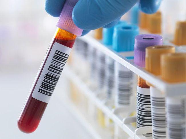 Повышение лимфоцитов в крови не всегда говорит о заболеваниях