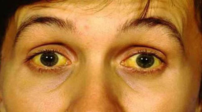 Сильная желтуха, может указывать на развитие гепатита, при появлении желтушности, необходимо срочно обратиться к врачу для проведения диагностики