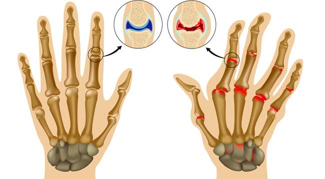 Полиартрит – хроническое заболевание, характеризующееся наличием воспалительного процесса сразу в нескольких суставах
