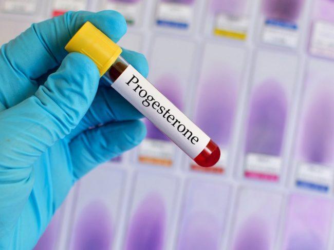 Если анализ на прогестерон производят при беременности или для особых целей, он включает информацию о неделе беременности, дне менструального цикла, о приёме контрацептивов