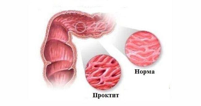 Во время проктита воспаляется слизистая прямой кишки, что сопровождается множеством неприятных факторов.