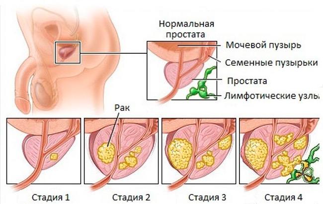 Для того чтобы узнать насколько распространился рак предстательной железы и определить наиболее эффективное лечение используют разделение на стадии